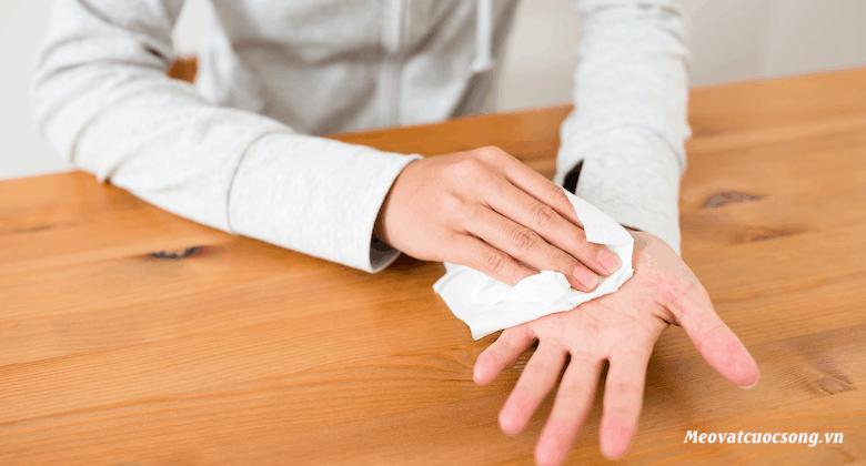 Mẹo ngăn ngừa mồ hôi tay hiệu quả tại nhà