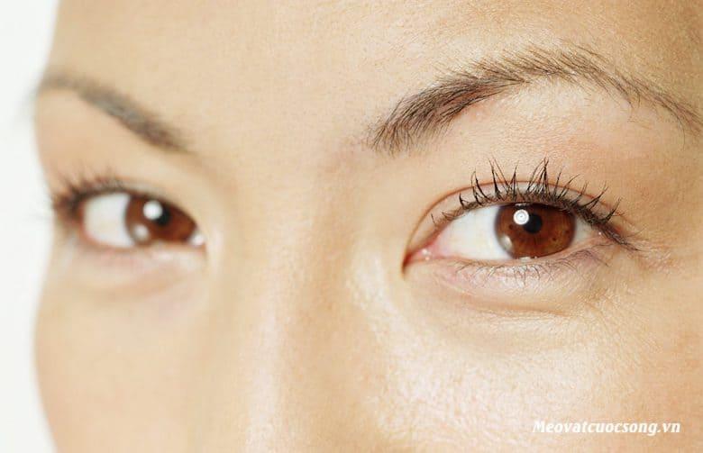 Mẹo vặt loại bỏ bọng mắt an toàn
