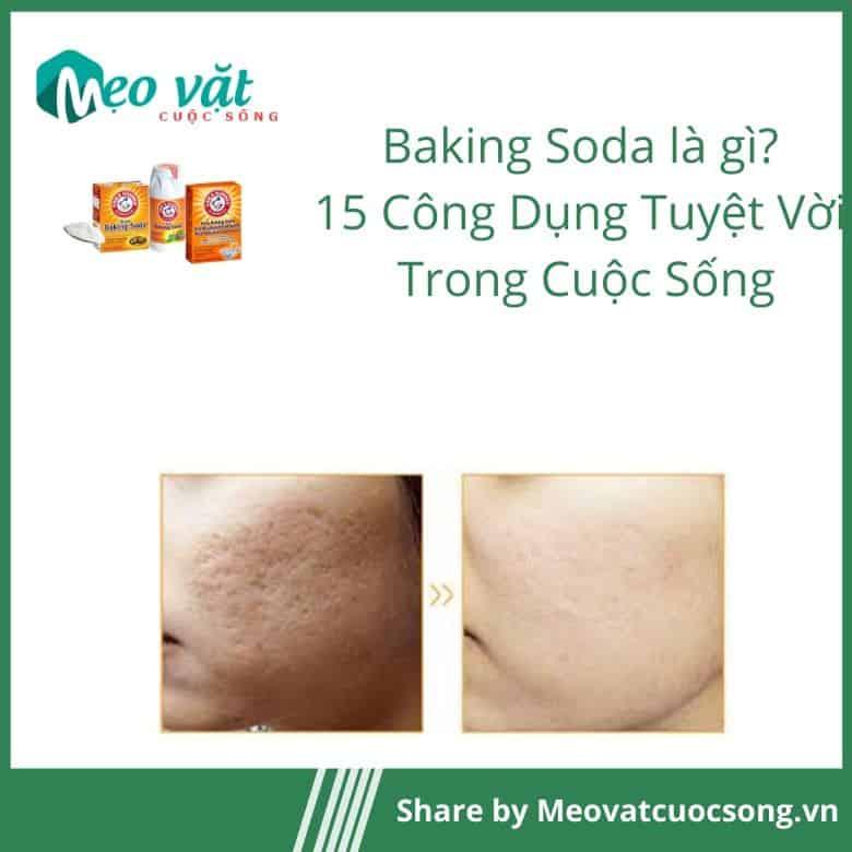 Công dụng của Baking Soda làm mờ sẹo
